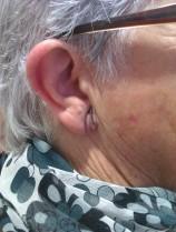 Cirugía oabellón auricular