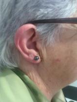 Cirugía pabellón auricular